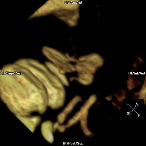 3D CT Reconstruction of Sticker in Esophagus
