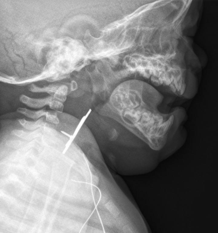 Karate Pin Xray (Lateral)