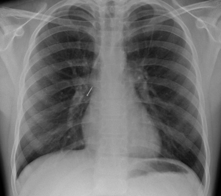 X光正位片上的圖釘