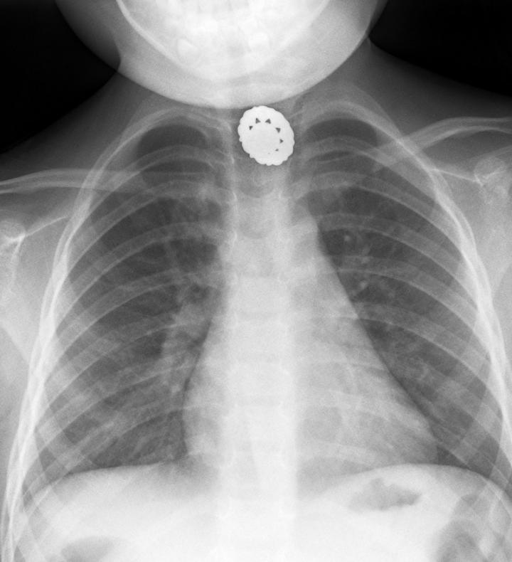 Coat Button Xray (AP)