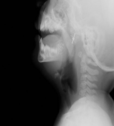 Mini Hairclip in Nasopharynx Xray (Lateral)